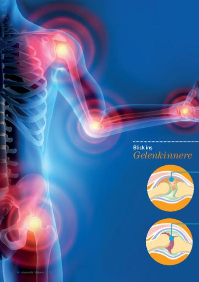 Vorschaubild Schmerzpunkte: Wenn rheumatische Erkrankungen den Alltag einschränken